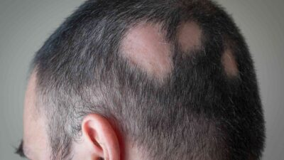 5 Best Alopecia Areata Natural Treatment Options That Work